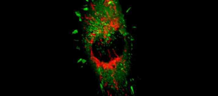RFP Mitochondria